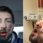 Sigaretta elettronica esplode in bocca, uomo perde 7 denti e resta sfigurato