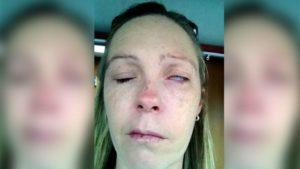 Donna completamente sfigurata dopo la puntura di una zecca, una madre di 43 anni ha contratto la malattia di Lyme