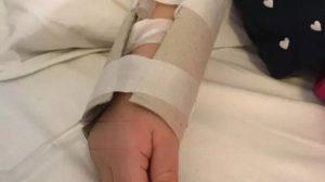 Malasanità in Calabria – Cartone al posto delle stecche su un bambino