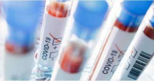 Coronavirus, il bollettino di oggi in Italia: 13.532 nuovi casi e 311 decessi