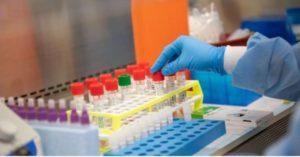 Coronavirus, sono 116 i contagi registrati in Calabria nell'ultimo giorno