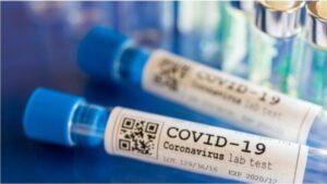 Coronavirus, il bollettino di oggi in Italia: 9.630 nuovi casi e 274 decessi