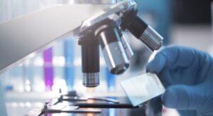 Tumore al pancreas, individuata dall'Unical la proteina che ne favorisce la crescita