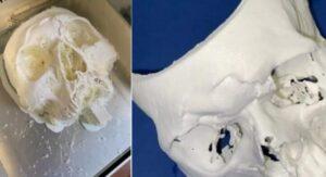 Chirurgo calabrese a Torino ricostruisce il volto di un ventitreenne con la stampa 3D
