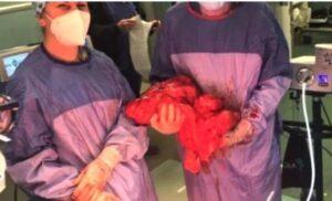 """Asportato un raro tumore di 10 kg al """"Fazzi"""" di Lecce. Nessuna trasfusione: la paziente è testimone di Geova"""